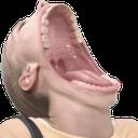 mouthgape