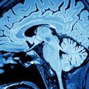 Neuroscience and Psychology